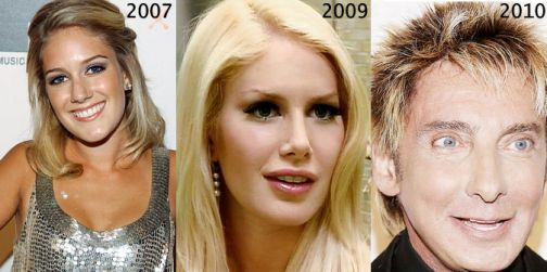 Heidi Montag's shocking new surgery. Reveals new face.